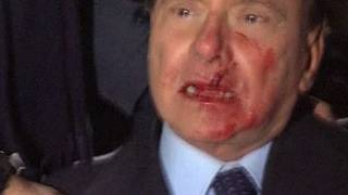 Berlusconi attacked, struck in face at rally (Video)