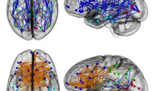 Men and women's brains are 'wired differently'