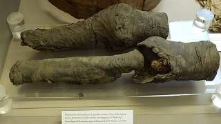 Study: 3,200-yo Set of Mummified Legs Belonged to Queen Nefertari