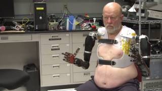 A taste of the future: Double amputee controls two bionic arms at the same time