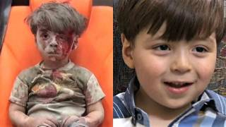 Omran Daqneesh, Aleppo's Bloodied Boy, Shown in new Images